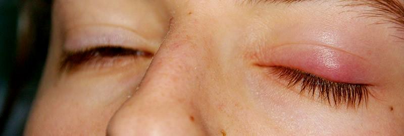 Инфекционный Блефарит фото