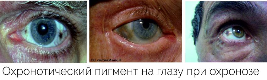 Первые симптомы алкаптонурии