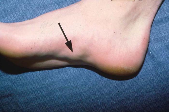 Фиброма на ноге под кожей фото