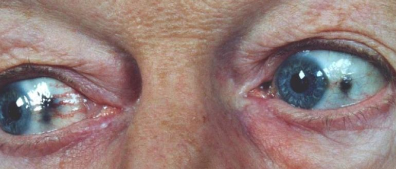 алкаптонурия фото глаза