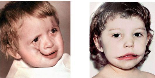 Гипоплазия средней части лица