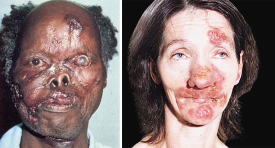 Последствия третичного сифилиса фото