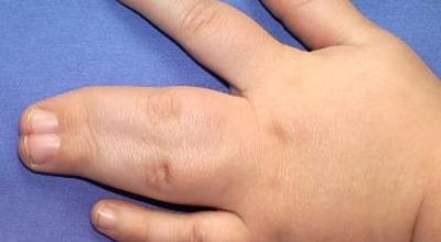 Синдактилия пальцев рук