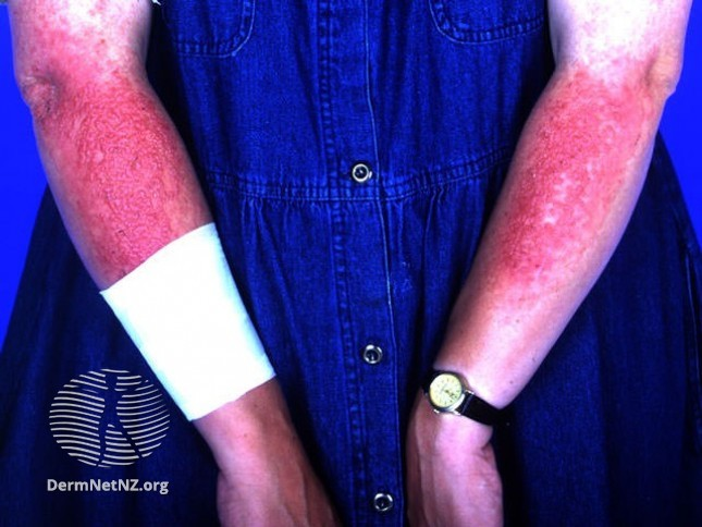 Контактный дерматит на руках от солнца фото