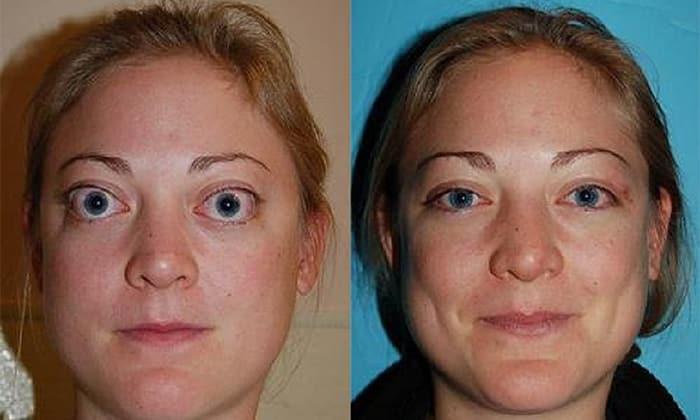 Базедова болезнь фото до и после лечения