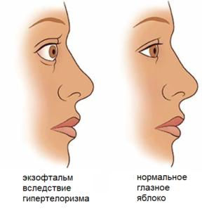 Базедова болезнь фото до и после