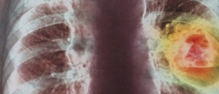Мелкоклеточный рак легкого фото рентген