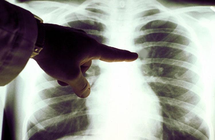 Мелкоклеточный рак легкого фото