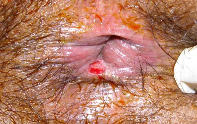 Послеродовая анальная трещина фото