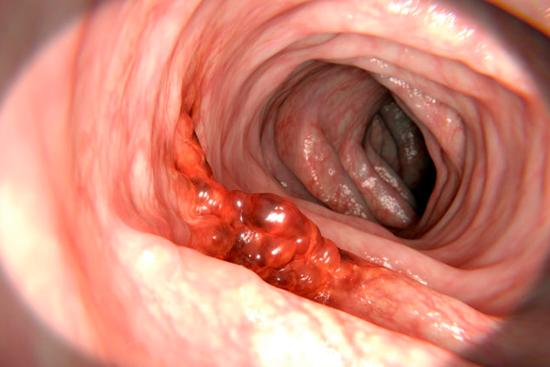 Рак прямой кишки 3 стадия фото