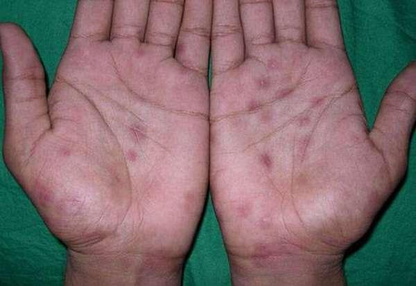 Сифилис на руках фото