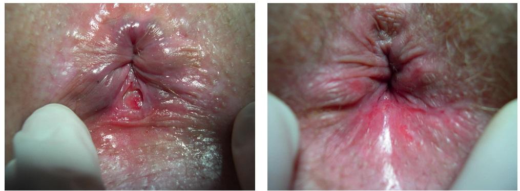 анальная трещина на фото до и после операции