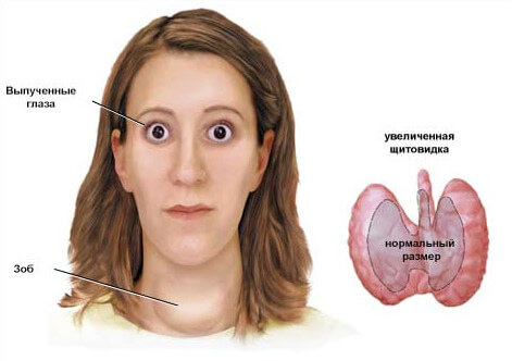 базедова болезнь схема фото