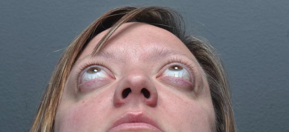 базедова болезнь у женщины фото