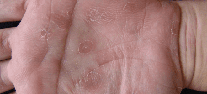 вторичный сифилис на руках фото