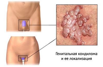 генитальная кондилома на фото