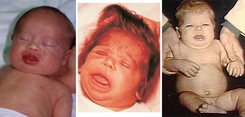 диффузный зоб у ребенка базедова болезнь фото