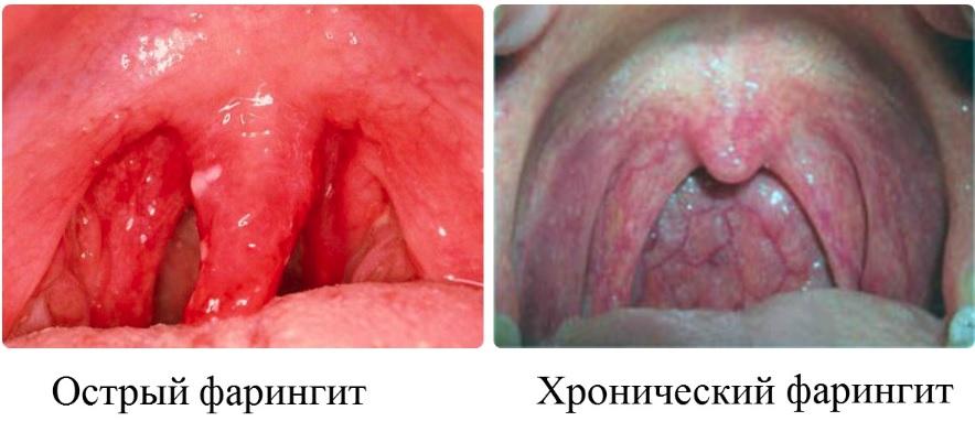 острый и хронический фарингит разница фото