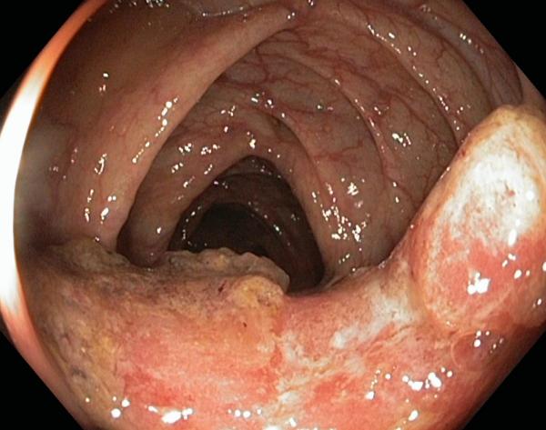 рак кишечника фото с камеры