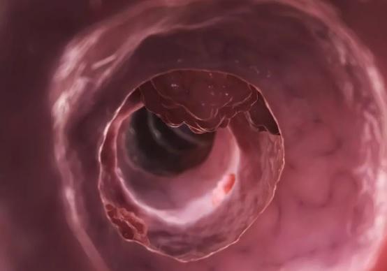 рак кишечника 1 стадия фото
