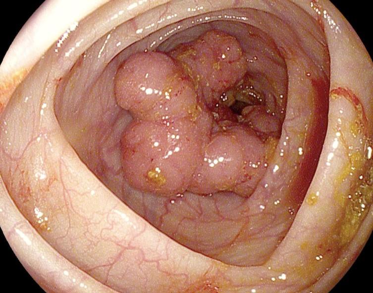 рак кишечника 4 стадия фото