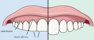 фото разница бруксизм и здоровые зубы