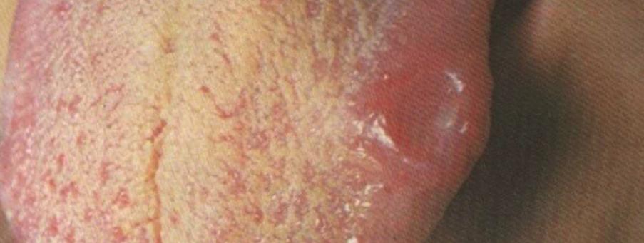 шанкр от сифилиса фото