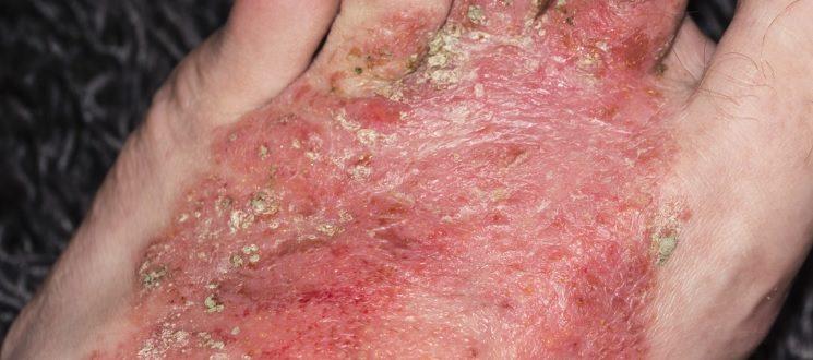 Аллергические заболевания кожи фото