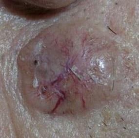 Плоскоклеточный рак последняя стадия фото